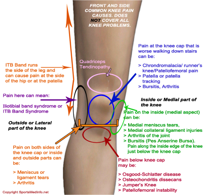 Pain below the Knee